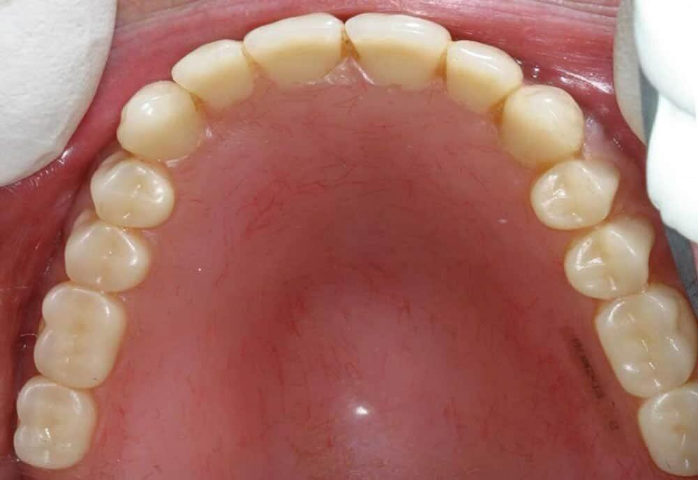 Traditional dentures vs teeth implants