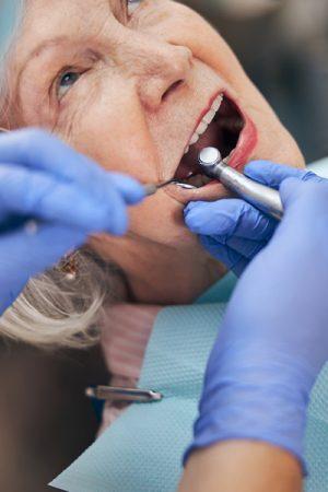 Teeth Implants Lakeland FL
